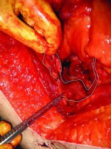 Uterus and fallopian tubes
